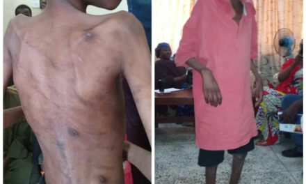 13 year-old boy allegedly abused by his father and stepmothers rescued in Borno state
