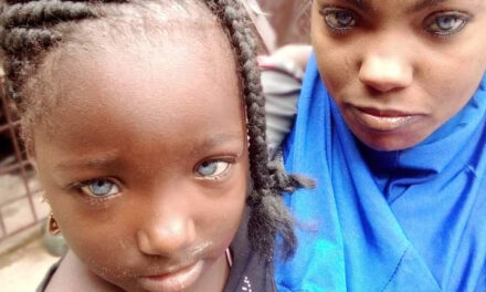 A father has rejected his two daughters because of their eyes color